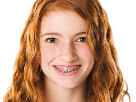 Ortodontia: sorriso alinhado, saúde em equilíbrio