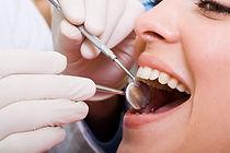 Periodontia gengivite periodontite