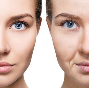 Woman's face before and after rejuvenati