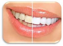 odontologia_estetica-min.jpg