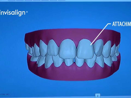 Movimentação dos dentes no Invisalign