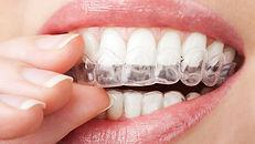 ortodontia-min.jpg