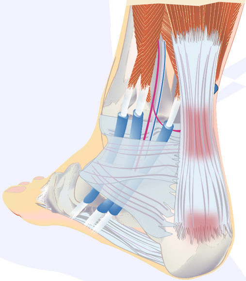 Precision Physical Therapy Tendinitis Treatment achilles tendinitis achilles pain ankle pain rehab