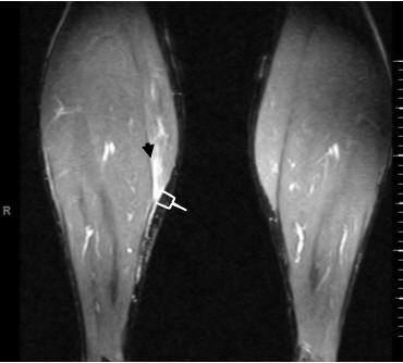 MRI of Calf Tear Precision Physical Therapy Fair Lawn