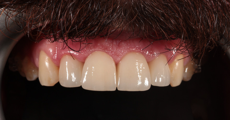 After 4 porcelain laminate veneers