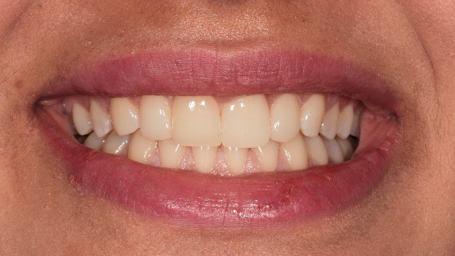 No-prep laminate veneers