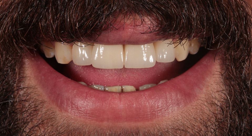 After 4 laminate porcelain veneers