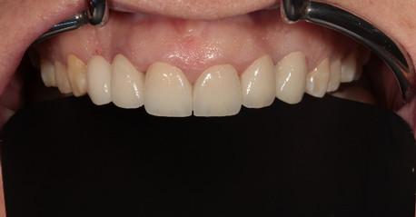 Zirconia crowns on six front teeth