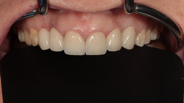 Zirconia crowns on six front teeth