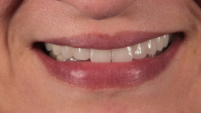 Porcelain fuced to metal crowns