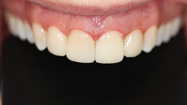 Porcelain laminate veneers