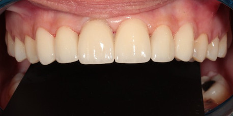 After smile design and porcelain laminate veneers