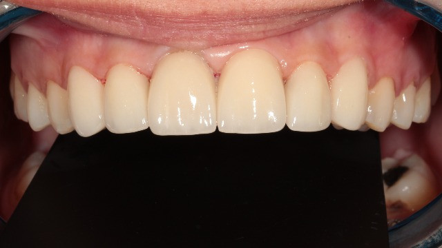 After smile design and porcelain laminate veneers