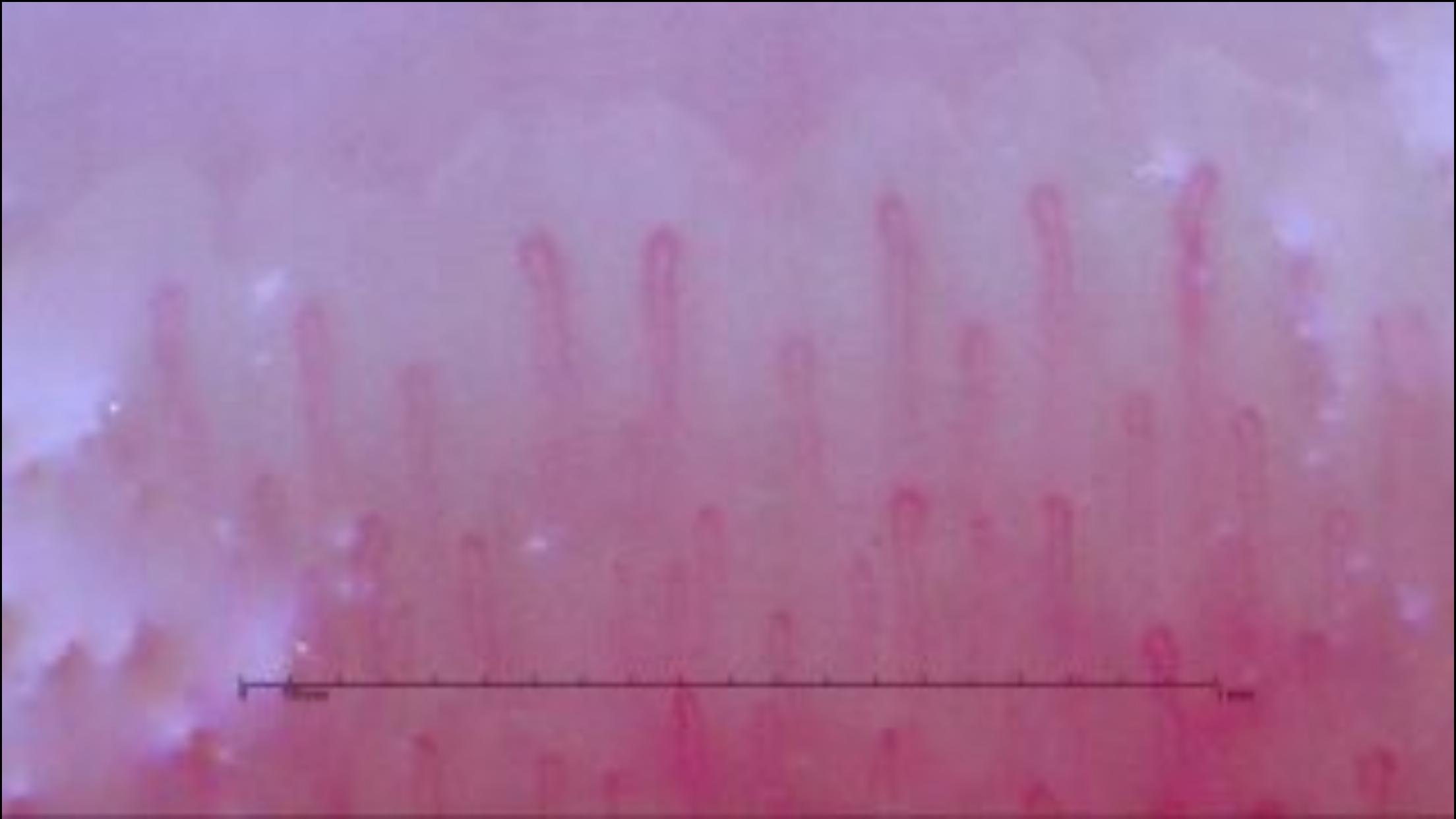 毛細血管血流測定