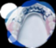 protese_parcial_removível-01.png