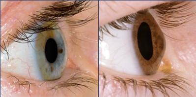 Olho com ceratocone