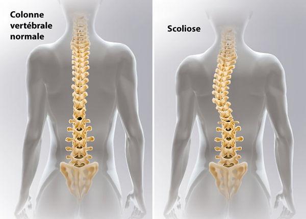 Scoliose-ce-que-vous-devez-savoir.jpg