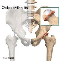 artrose-quadril-pacientes-jovens-1.jpg