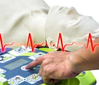 Sussex First Aid Training Courses What you need to know about Defibrillators Burgess Hill