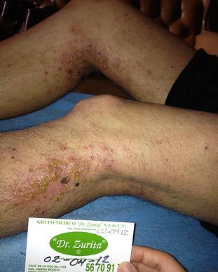 Dermatitis1.jpg