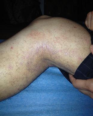 Dermatitis3.jpg
