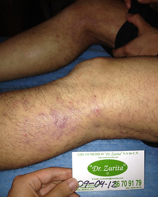 Dermatitis2.jpg