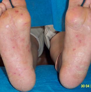 dermatitis2.png