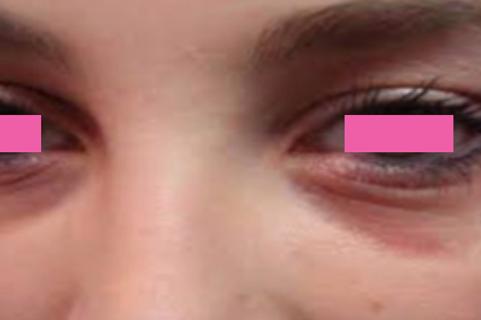 alergia.png