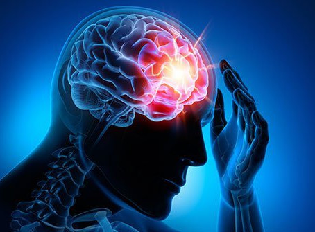 Misconceptions of Concussions and Care for Post-Concussion Syndrome