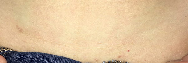 C Section Scar After Second Treatment