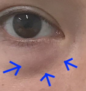 Under Eye Puffiness + Line Before.png