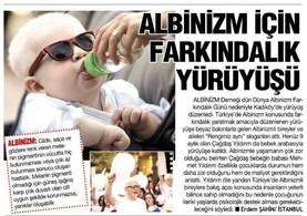 Basinda Albinizm Günü, 2016
