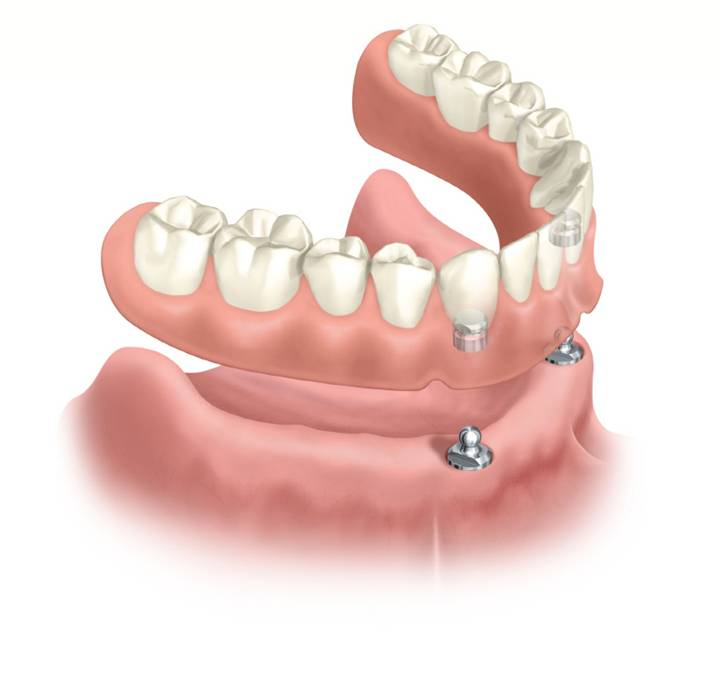 Implant - supported dentures
