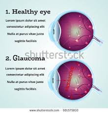 Market Research activity on Brinzolamide in Glaucoma