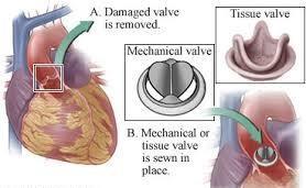 Survival analysis of cardiac patients undergoing valve surgery