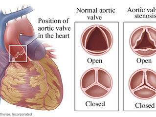 Meta-Analysis of Cardiac patients undergoing valve replacement (AVR)