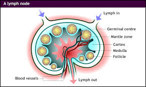 Competitive Intelligence report on Mantle Cell Lymphoma
