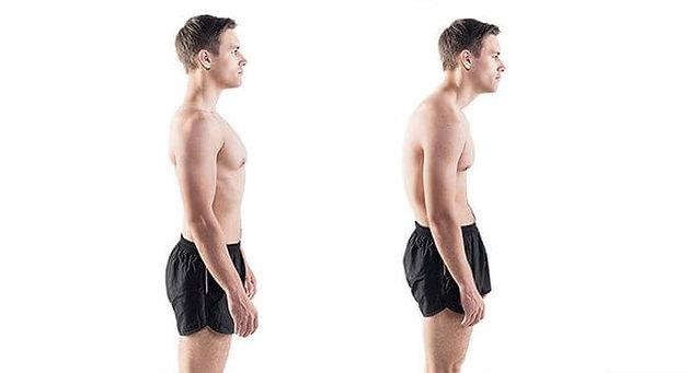 Poor-posture-man-672x365.jpg