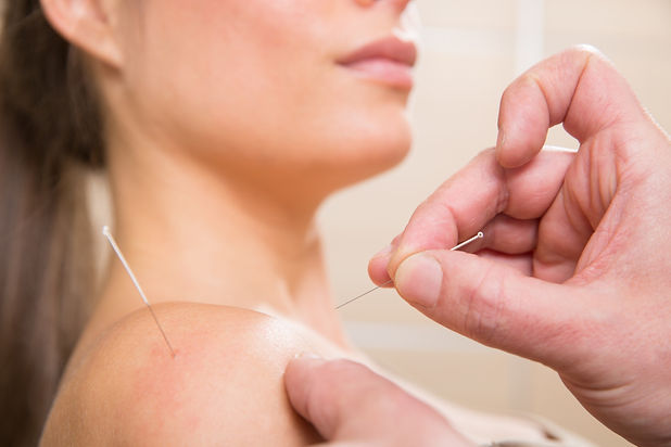 istock-shoulder-acupuncture-low-mb.jpg