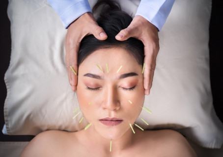 5 things you didn't know about acupuncture