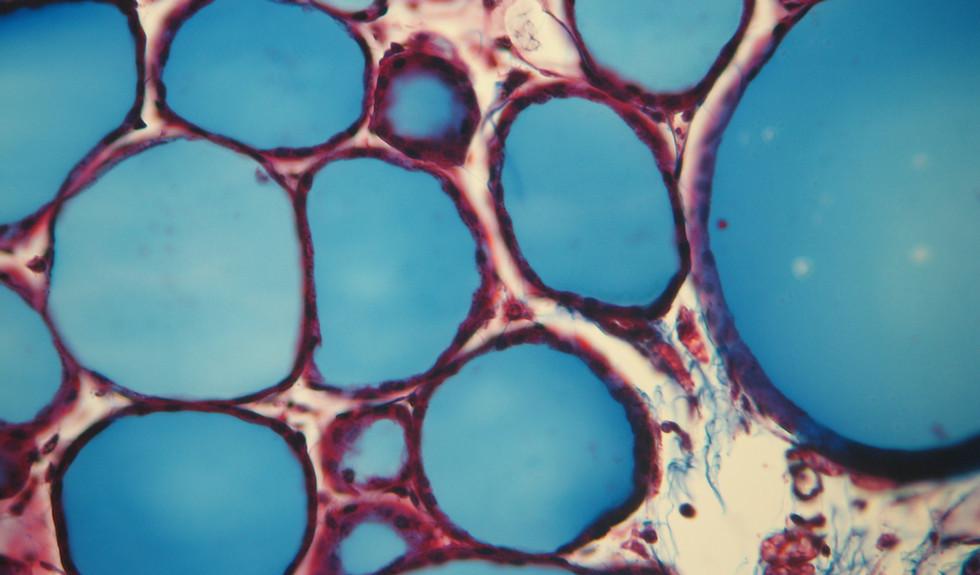 Thyroid staining