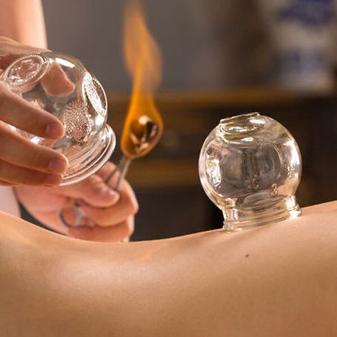 Cupping-therapy.jpg