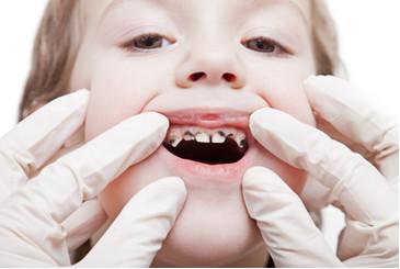 Criança com dentição comprometida pela Cárie