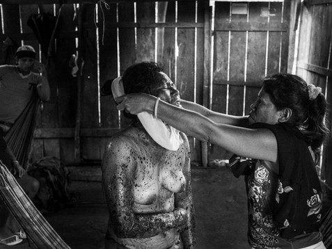In December, 2015, the patient's mother, a young girl called Tania, puts a blouse on her after an intense healing session performed by Aladino, a native Bora shaman, inside his home in a small village called Pebas, in the heart of the Amazon. The young woman has wounds all over her body, Aladino believes that the illness was caused by a curse made by her enemies. They expect that with the help of a mixture of plants and a strong healing session, she will recover rapidly.