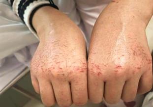 英美專家: 破損皮膚惹病毒感染風險極高