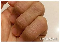 dion kwok 濕疹 case 4
