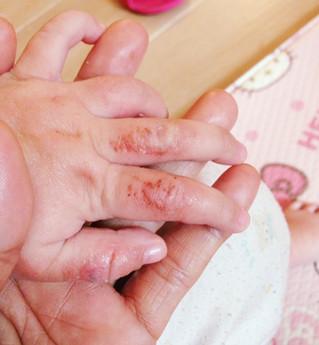 嬰兒濕疹 | 濕疹調理 | BB類固醇反彈 | 大爆發,全身出紅疹、發炎、周身痕,皮膚敏感簡直一發不可收拾,全身無一忽好肉