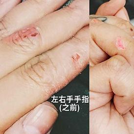 Jane Ho hand before .jpg