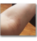 irene Li 濕疹 濕疹成功案例   香港   Carun卡倫濕疹萬用膏萬寧藥劑師推介  濕疹首選 嬰兒濕疹膏