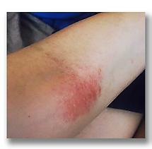irene Li 濕疹 case 1濕疹成功案例 | 香港 | Carun卡倫濕疹萬用膏萬寧藥劑師推介  濕疹首選 嬰兒濕疹膏